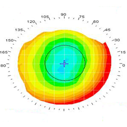 Corneal topography test
